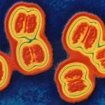 Возбудитель менингококковой инфекции